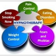 هیپنوتیزم